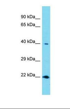 RNF113A Antibody - Western blot of Human Thyroid Tumor. RNF113A antibody dilution 1.0 ug/ml.  This image was taken for the unconjugated form of this product. Other forms have not been tested.