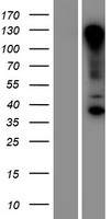 RNF121 Protein - Western validation with an anti-DDK antibody * L: Control HEK293 lysate R: Over-expression lysate