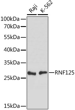 RNF125 / TRAC-1 Antibody - Western blot analysis of extracts of various cell lines, using RNF125 antibody at 1:1000 dilution. The secondary antibody used was an HRP Goat Anti-Rabbit IgG (H+L) at 1:10000 dilution. Lysates were loaded 25ug per lane and 3% nonfat dry milk in TBST was used for blocking. An ECL Kit was used for detection and the exposure time was 30s.