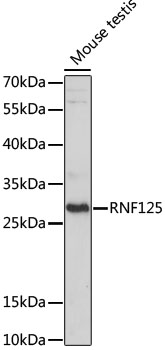 RNF125 / TRAC-1 Antibody - Western blot analysis of extracts of Mouse testis, using RNF125 antibody at 1:1000 dilution. The secondary antibody used was an HRP Goat Anti-Rabbit IgG (H+L) at 1:10000 dilution. Lysates were loaded 25ug per lane and 3% nonfat dry milk in TBST was used for blocking. An ECL Kit was used for detection and the exposure time was 10s.