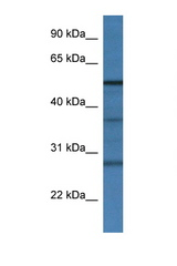 RNF14 antibody LS-C134969 Western blot of Rat Liver lysate. Antibody concentration 1 ug/ml.  This image was taken for the unconjugated form of this product. Other forms have not been tested.