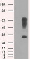 HEK293T cells were transfected with the pCMV6-ENTRY control (Left lane) or pCMV6-ENTRY RNF144B (Right lane) cDNA for 48 hrs and lysed. Equivalent amounts of cell lysates (5 ug per lane) were separated by SDS-PAGE and immunoblotted with anti-RNF144B.