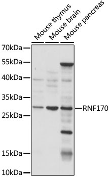 RNF170 Antibody - Western blot analysis of extracts of various cell lines, using RNF170 antibody at 1:1000 dilution. The secondary antibody used was an HRP Goat Anti-Rabbit IgG (H+L) at 1:10000 dilution. Lysates were loaded 25ug per lane and 3% nonfat dry milk in TBST was used for blocking. An ECL Kit was used for detection and the exposure time was 15s.