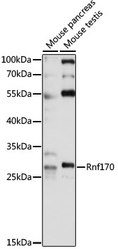 RNF170 Antibody - Western blot analysis of extracts of various cell lines, using Rnf170 antibody at 1:1000 dilution. The secondary antibody used was an HRP Goat Anti-Rabbit IgG (H+L) at 1:10000 dilution. Lysates were loaded 25ug per lane and 3% nonfat dry milk in TBST was used for blocking. An ECL Kit was used for detection and the exposure time was 30s.
