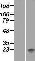 RNF181 Protein - Western validation with an anti-DDK antibody * L: Control HEK293 lysate R: Over-expression lysate
