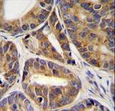 RNF215 Antibody - RNF215 Antibody immunohistochemistry of formalin-fixed and paraffin-embedded human prostate carcinoma tissue followed by peroxidase-conjugated secondary antibody and DAB staining.