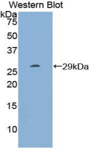 RNH1 Antibody - Western blot of recombinant RNH1.  This image was taken for the unconjugated form of this product. Other forms have not been tested.