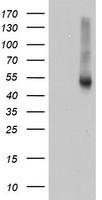 RNH1 Antibody - HEK293T cells were transfected with the pCMV6-ENTRY control (Left lane) or pCMV6-ENTRY RNH1 (Right lane) cDNA for 48 hrs and lysed. Equivalent amounts of cell lysates (5 ug per lane) were separated by SDS-PAGE and immunoblotted with anti-RNH1.