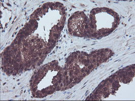 RNH1 Antibody - IHC of paraffin-embedded Carcinoma of Human prostate tissue using anti-RNH1 mouse monoclonal antibody.