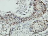Immunoperoxidase of monoclonal antibody to RNMT on formalin-fixed paraffin-embedded human squamous cell carcinoma tissue. [antibody concentration 3 ug/ml].