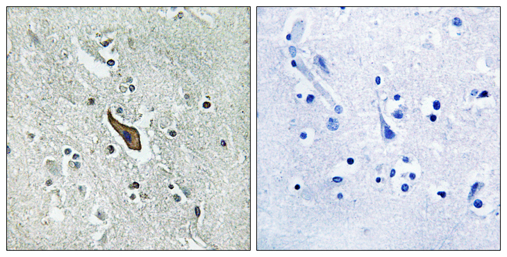 ROBO2 Antibody - Immunohistochemistry analysis of paraffin-embedded human brain tissue, using ROBO2 Antibody. The picture on the right is blocked with the synthesized peptide.
