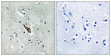 Immunohistochemistry analysis of paraffin-embedded human brain tissue, using ROBO2 Antibody. The picture on the right is blocked with the synthesized peptide.