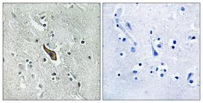 IHC of paraffin-embedded human brain tissue, using ROBO2 Antibody. The picture on the right is treated with the synthesized peptide.