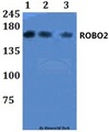 Western blot of ROBO2 antibody at 1:500 dilution. Lane 1: HEK293T whole cell lysate. Lane 2: Raw264.7 whole cell lysate. Lane 3: H9C2 whole cell lysate.