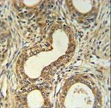 ROBO4 Antibody - Roundabout 4 Antibody IHC of formalin-fixed and paraffin-embedded prostate carcinoma followed by peroxidase-conjugated secondary antibody and DAB staining. This data demonstrates the use of the Roundabout 4 Antibody for immunohistochemistry.