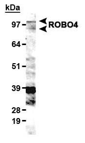 Detection of ROBO4 in HUVEC cell lysates with LS-B6694.  This image was taken for the unconjugated form of this product. Other forms have not been tested.
