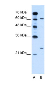 RORA / ROR Alpha Antibody - RORA antibody ARP45607_P050-NP_002934-RORA(RAR-related orphan receptor A) Antibody Western blot of HepG2 cell lysate.  This image was taken for the unconjugated form of this product. Other forms have not been tested.