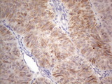 Immunohistochemical staining of paraffin-embedded Adenocarcinoma of Human ovary tissue using anti-RORB mouse monoclonal antibody. (Heat-induced epitope retrieval by 1mM EDTA in 10mM Tris buffer. (pH8.5) at 120°C for 3 min. (1:150)