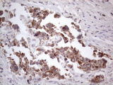 Immunohistochemical staining of paraffin-embedded Adenocarcinoma of Human breast tissue using anti-RORB mouse monoclonal antibody. (Heat-induced epitope retrieval by 1mM EDTA in 10mM Tris buffer. (pH8.5) at 120°C for 3 min. (1:150)