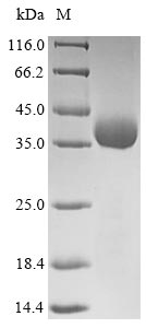 Influenza A H5N1 Hemagglutinin Protein - (Tris-Glycine gel) Discontinuous SDS-PAGE (reduced) with 5% enrichment gel and 15% separation gel.