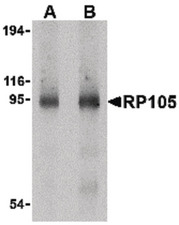 Western blot of RP105 in human spleen tissue lysate with RP105 antibody at (A) 0.5 and (B) 1 ug/ml.