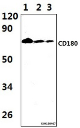 Western blot of CD180 antibody at 1:1000 dilution. Lane 1: HEK293T whole cell lysate.