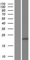RPE Protein - Western validation with an anti-DDK antibody * L: Control HEK293 lysate R: Over-expression lysate