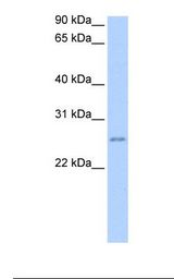 Jurkat cell lysate. Antibody concentration: 2.0 ug/ml. Gel concentration: 12%.  This image was taken for the unconjugated form of this product. Other forms have not been tested.
