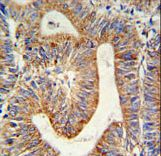 RPL17 / Ribosomal Protein L17 Antibody - RPL17 Antibody IHC of formalin-fixed and paraffin-embedded colon carcinoma followed by peroxidase-conjugated secondary antibody and DAB staining.