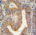 RPL17 Antibody IHC of formalin-fixed and paraffin-embedded colon carcinoma followed by peroxidase-conjugated secondary antibody and DAB staining.