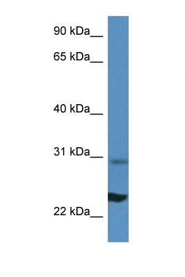 RPL17 antibody LS-C135372 Western blot of Mouse Liver lysate. Antibody concentration 1 ug/ml.  This image was taken for the unconjugated form of this product. Other forms have not been tested.