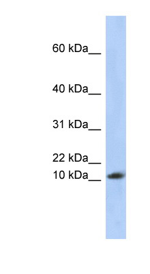 RPL30 antibody LS-C111814 Western blot of Placenta lysate.  This image was taken for the unconjugated form of this product. Other forms have not been tested.