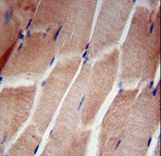 RPL5 / Ribosomal Protein L5 Antibody - RPL5 Antibody immunohistochemistry of formalin-fixed and paraffin-embedded human skeletal muscle followed by peroxidase-conjugated secondary antibody and DAB staining.