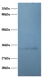 Western blot of 60S ribosomal protein L5 polyclonal Antibody at 2 ug/ml + EC109 whole cell lysate at 20 ug. Secondary: Goat polyclonal to Rabbit IgG at 1:15000 dilution. Predicted band size: 32.7 kDa. Observed band size: 32.7 kDa.  This image was taken for the unconjugated form of this product. Other forms have not been tested.
