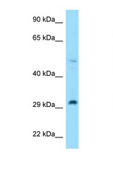 RPL7 antibody Western blot of H226 Cell lysate. Antibody concentration 1 ug/ml.  This image was taken for the unconjugated form of this product. Other forms have not been tested.