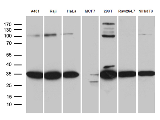 RPL7A / Ribosomal Protein L7a Antibody - Western blot analysis of extracts. (35ug) from 7 different cell lines by using anti-RPL7A monoclonal antibody. (1:500)