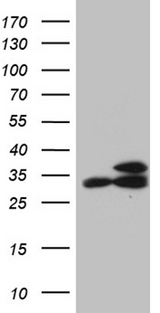 RPL7A / Ribosomal Protein L7a Antibody - HEK293T cells were transfected with the pCMV6-ENTRY control. (Left lane) or pCMV6-ENTRY RPL7A. (Right lane) cDNA for 48 hrs and lysed. Equivalent amounts of cell lysates. (5 ug per lane) were separated by SDS-PAGE and immunoblotted with anti-RPL7A. (1:2000)