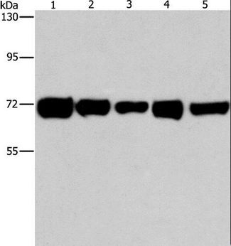 RPN1 / Ribophorin I Antibody - Western blot analysis of HeLa, A549 and MCF7 cell, human liver cancer and lung cancer tissue, using RPN1 Polyclonal Antibody at dilution of 1:550.