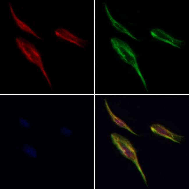 RPN1 / Ribophorin I Antibody - Staining HeLa cells by IF/ICC. The samples were fixed with PFA and permeabilized in 0.1% Triton X-100, then blocked in 10% serum for 45 min at 25°C. Samples were then incubated with primary Ab(1:200) and mouse anti-beta tubulin Ab(1:200) for 1 hour at 37°C. An AlexaFluor594 conjugated goat anti-rabbit IgG(H+L) Ab(1:200 Red) and an AlexaFluor488 conjugated goat anti-mouse IgG(H+L) Ab(1:600 Green) were used as the secondary antibod