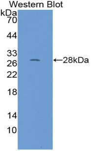 RPP40 / Ribonuclease P Antibody - Western blot of recombinant RPP40 / Ribonuclease P.