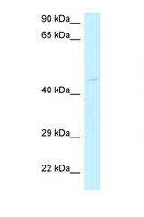 RPP40 / Ribonuclease P Antibody - RPP40 antibody Western blot of HeLa Cell lysate. Antibody concentration 1 ug/ml.  This image was taken for the unconjugated form of this product. Other forms have not been tested.