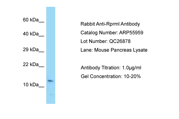 RPRML Antibody -  This image was taken for the unconjugated form of this product. Other forms have not been tested.