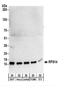 Detection of Human and Mouse RPS14 by Western Blot. Samples: Whole cell lysate (50 ug) from 293T, HeLa, Jurkat, mouse TCMK-1, and mouse NIH3T3 cells. Antibodies: Affinity purified rabbit anti-RPS14 antibody used for WB at 0.1 ug/ml. Detection: Chemiluminescence with an exposure time of 3 minutes.