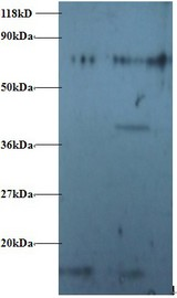 RPS16 / Ribosomal Protein S16 Antibody - Western blot of RPS16 protein antibody at 2 ug/ml. Lane 1:293T whole cell lysate. Lane 2: EC109 whole cell lysate . Secondary: Goat polyclonal to Rabbit IgG at 1:15000 dilution . Predicted band size: 17 kDa . Observed band size: 17 kDa Additional bands at: 80 kDa. We are unsure as to the identity of this extra band. This image was taken for the unconjugated form of this product. Other forms have not been tested.