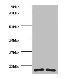 Western blot All lanes: RPS16 protein antibody at 2µg/ml Lane 1: 293T whole cell lysate Lane 2: EC109 whole cell lysate Secondary Goat polyclonal to rabbit IgG at 1/15000 dilution Predicted band size: 17 kDa Observed band size: 17 kDa