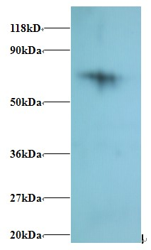 Western blot of 40S ribosomal protein S18 Antibody at 2 ug/ml + 293T whole cell lysate at 20 ug. Secondary: Goat polyclonal to Rabbit IgG at 1:15000 dilution. Predicted band size: 16 kDa. Observed band size: 75 kDa.  This image was taken for the unconjugated form of this product. Other forms have not been tested.