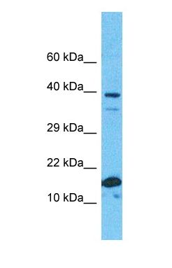 Western blot of RS19 Antibody with human Fetal Kidney lysate.  This image was taken for the unconjugated form of this product. Other forms have not been tested.