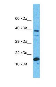 RPS19 / Ribosomal Protein S19 Antibody - Western blot of RS19 Antibody with human Fetal Kidney lysate.  This image was taken for the unconjugated form of this product. Other forms have not been tested.