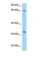 RPS2 / Ribosomal Protein S2 Antibody - RPS2 antibody Western blot of HepG2 Cell lysate. Antibody concentration 1 ug/ml.  This image was taken for the unconjugated form of this product. Other forms have not been tested.