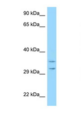 RPS2 antibody Western blot of HeLa Cell lysate. Antibody concentration 1 ug/ml.  This image was taken for the unconjugated form of this product. Other forms have not been tested.